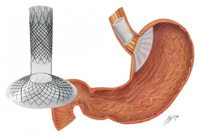 BFKW LLC raised $2.1 million to position the medical device company for larger clinical trials for its new bariatric medical device to treat obesity. The device is placed endoscopically within the stomach and esophagus to decrease hunger.